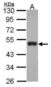 Peripherin Antibody (PA5-21403)