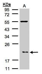 p21 ARC Antibody (PA5-21404) in Western Blot
