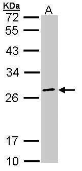 eIF3k Antibody (PA5-21407) in Western Blot
