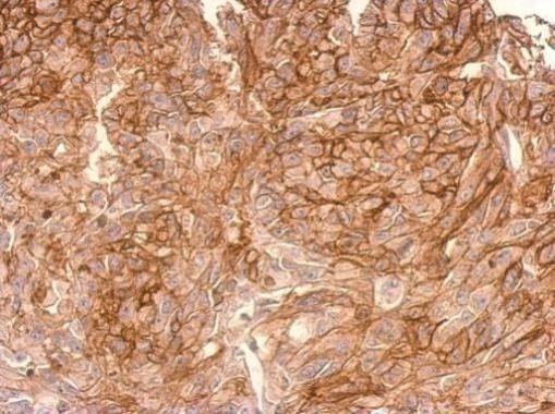 ADAMTSL2 Antibody (PA5-21414) in Immunohistochemistry (Paraffin)