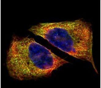 beta-4 Tubulin Antibody (PA5-21416)
