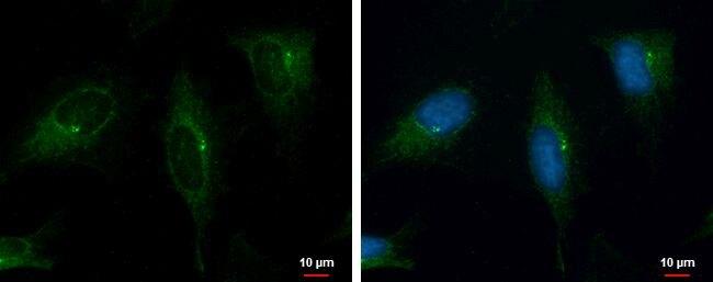 PRKD2 Antibody (PA5-21427) in Immunofluorescence