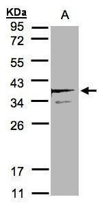SCAMP3 Antibody (PA5-21428) in Western Blot