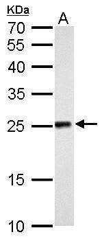 NDUFV2 Antibody (PA5-21432) in Western Blot