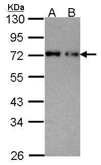 NUP62 Antibody (PA5-21435) in Western Blot