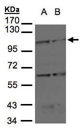 BMPR2 Antibody (PA5-21437)
