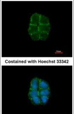 Desmoglein 2 Antibody (PA5-21444)