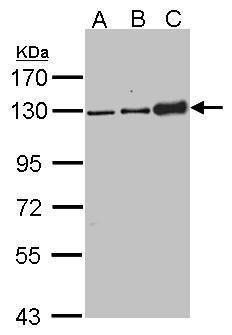 Desmoglein 2 Antibody (PA5-21444) in Western Blot