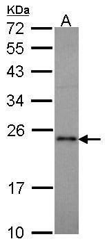 RAP1A Antibody (PA5-21457) in Western Blot