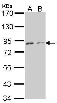 NEK4 Antibody (PA5-21458) in Western Blot