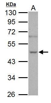 NOVA1 Antibody (PA5-21459) in Western Blot