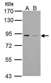 PDE4B Antibody (PA5-21460) in Western Blot
