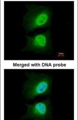 CAS Antibody (PA5-21468) in Immunofluorescence