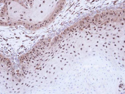 DMC1 Antibody (PA5-21472) in Immunohistochemistry (Paraffin)