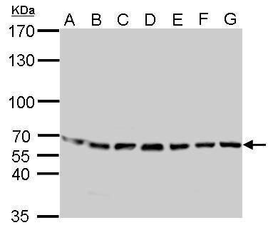 STIP1 Antibody (PA5-21473) in Western Blot
