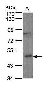 BBH Antibody (PA5-21477) in Western Blot