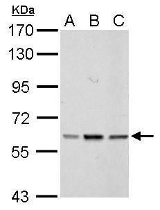 PARP3 Antibody (PA5-21478) in Western Blot