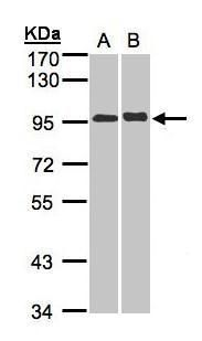 IL12RB2 Antibody (PA5-21479) in Western Blot
