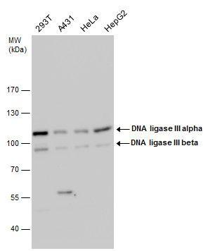 DNA Ligase III Antibody (PA5-21480) in Western Blot
