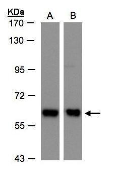 COPD Antibody (PA5-21484) in Western Blot