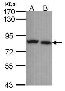 Calpain 5 Antibody (PA5-21486) in Western Blot