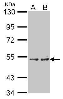 CYP4A11 Antibody (PA5-21497) in Western Blot