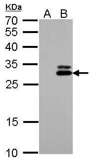 Kallikrein 7 Antibody (PA5-21499) in Western Blot