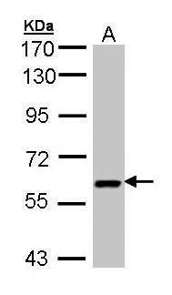 UAP1 Antibody (PA5-21500) in Western Blot
