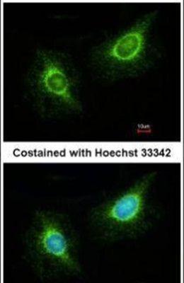 Laminin beta-3 Antibody (PA5-21514) in Immunofluorescence