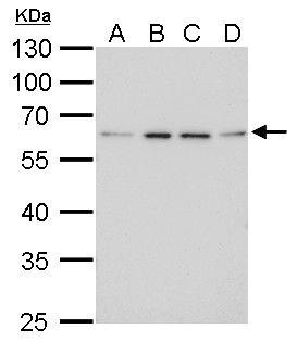 FGFR5 Antibody (PA5-21516) in Western Blot