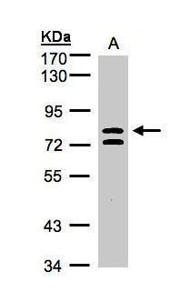 L3MBTL1 Antibody (PA5-21518) in Western Blot