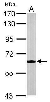 MPP2 Antibody (PA5-21526) in Western Blot