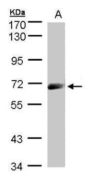 IL12RB1 Antibody (PA5-21527)