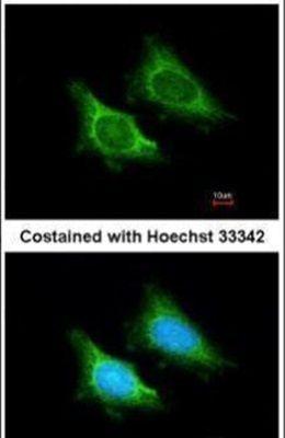 MRPS5 Antibody (PA5-21528)