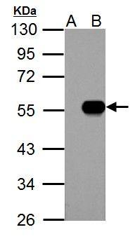 IP6K1 Antibody (PA5-21531) in Western Blot