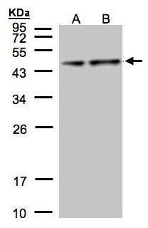 PDH Antibody (PA5-21536) in Western Blot