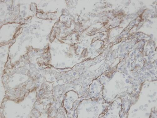 CLIC3 Antibody (PA5-21568) in Immunohistochemistry (Paraffin)