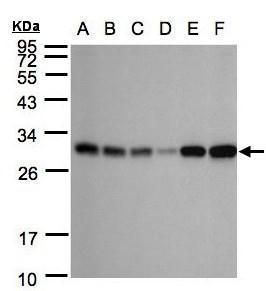 Adenylate Kinase 4 Antibody (PA5-21569) in Western Blot