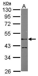 LDB1 Antibody (PA5-21577) in Western Blot