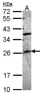 GRAP Antibody (PA5-21584) in Western Blot