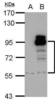 PDE4D Antibody (PA5-21590) in Western Blot