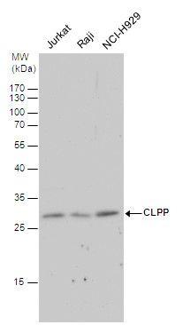 CLPP Antibody (PA5-21591) in Western Blot