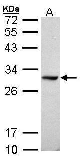 DDAH1 Antibody (PA5-21592) in Western Blot