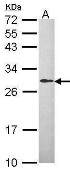 DCXR Antibody (PA5-21596) in Western Blot