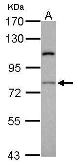 RASGRP4 Antibody (PA5-21597) in Western Blot