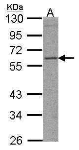 TFEB Antibody (PA5-21616) in Western Blot