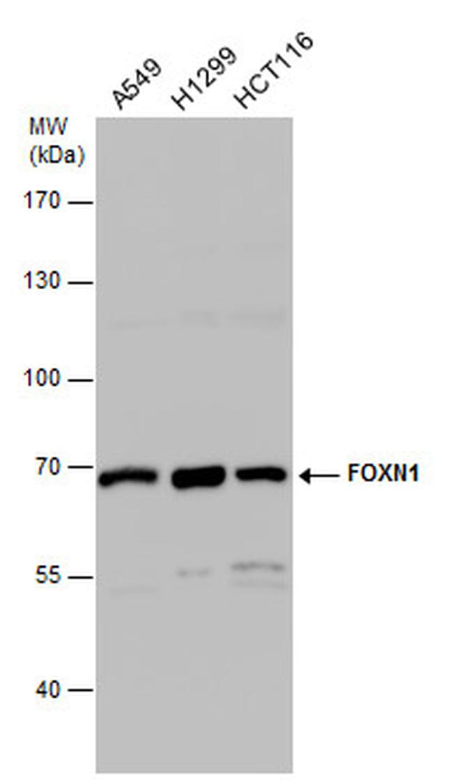 FOXN1 Antibody (PA5-21618) in Western Blot