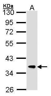 FBXL12 Antibody (PA5-21621) in Western Blot
