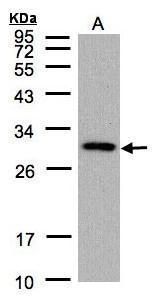 CTDSP2 Antibody (PA5-21624) in Western Blot