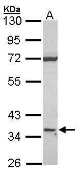 CD1d Antibody (PA5-21625)